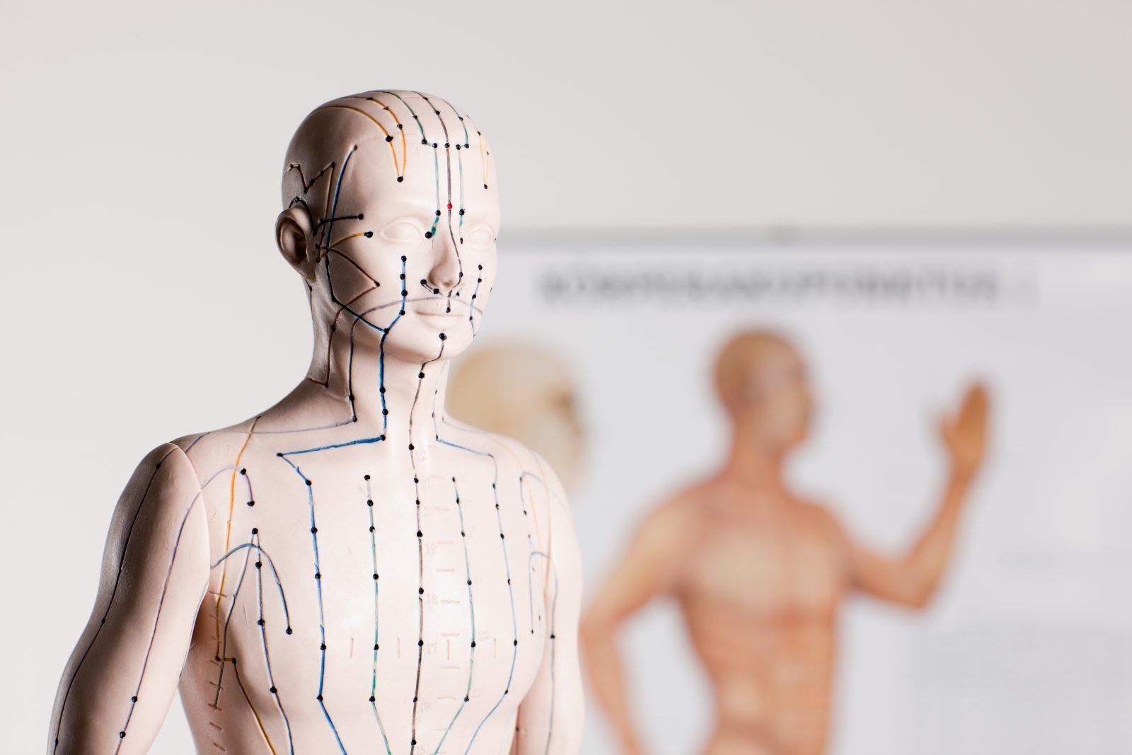 Mihin Akupunktio Auttaa